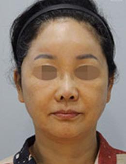 韩国zell整形SMAS拉皮手术前后对比图_术后
