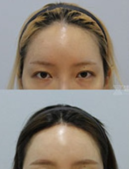 韩国zell整形额头提升+额头缩小手术案例_术前