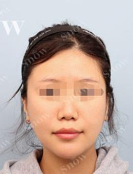 韩国snow颧骨手术+双下巴吸脂前后对比图