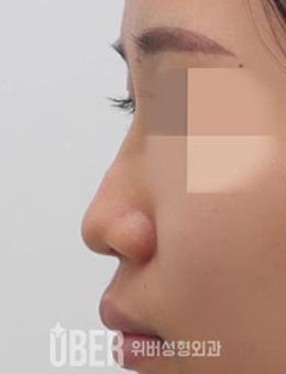 韩国玉芭整形凸嘴矫正+鼻整形前后对比照_术前