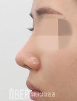 韩国玉芭整形凸嘴矫正+鼻整形前后对比照_术后