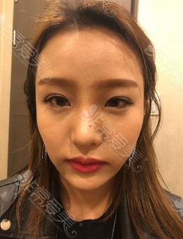 韩国TS整形经历分享:全脸脂肪填充+眼鼻修复前后对比日记