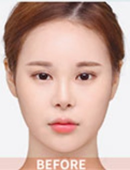 韩国dr朵整形鼻综合手术案例_术前