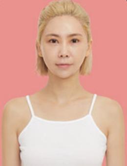 韩国dr朵整形眼鼻整形+胸重建修复手术案例_术前