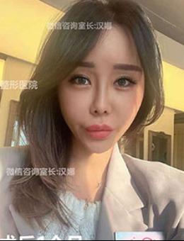 韩国奥森博埋线提升+隆鼻手术对比案例