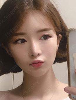 -韩国TS整形眼修复+鼻失败修复前后对比照片