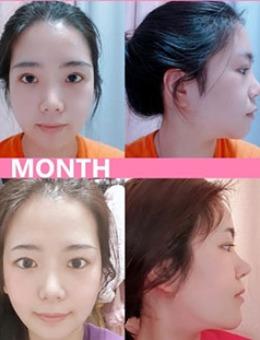 韩国dr.朵整形轮廓三件套+眼鼻手术5个月对比图