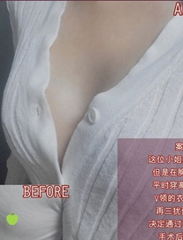 韩国dr朵假体隆胸手术前后对比图