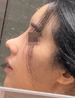 """韩国优雅人肋骨鼻修复""""韩系小翘鼻尖""""手术前后对比图"""