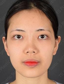 韩国TS整形做鼻子好吗?这组照片案例用实力说明一切!