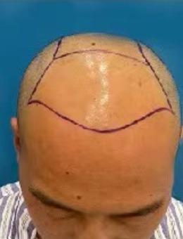 西安沐森植发医院头顶增密案例图