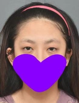 韩国icon非切开眼肌矫正+脂肪填充+额头提升案例