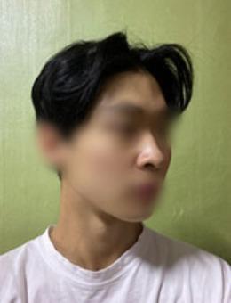 男人做鼻综合整形什么样?看dr朵驼峰鼻+鼻翼缩小案例