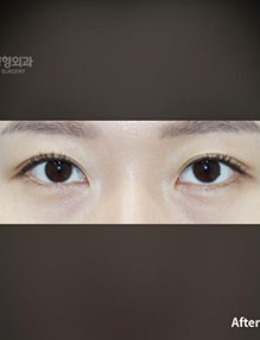 韩国普拉美斯单眼皮变双眼皮手术对比案例