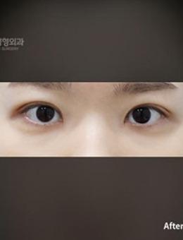 韩国普拉美斯双眼皮手术对比照