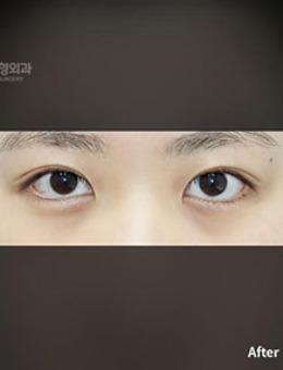 韩国普拉美斯自然风双眼皮手术对比照