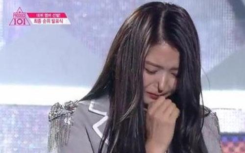 韩国艺人任娜英捏鼻子 鼻子塌陷