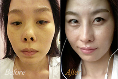 韩国4月31日整形外科鼻修复前后对比案例图