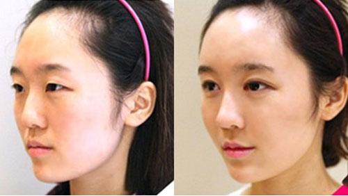 韩国明星线整形外科隆鼻手术前后对比照片