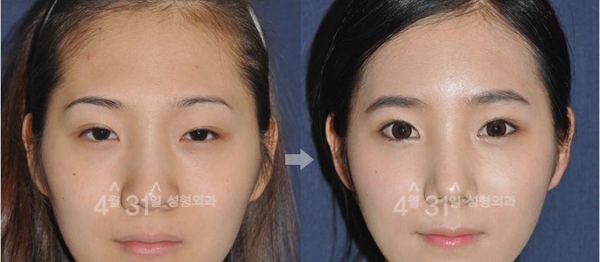 眼修复对比案例韩国4月31日整形医院