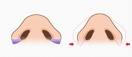 韩国鼻翼缩小手术示意图 鼻翼缩小价格表