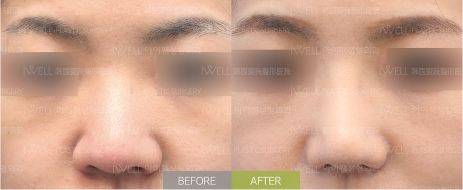 韩国爱婷鼻翼缩小手术案例