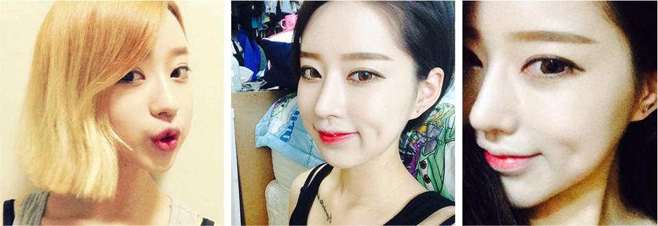 韩国爱我整形医院鼻子整形术后三个月