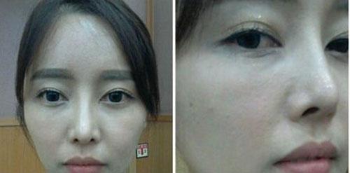 鼻部修复前的照片