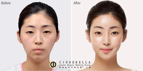 韩国新帝瑞娜整形医院面部轮廓对比图