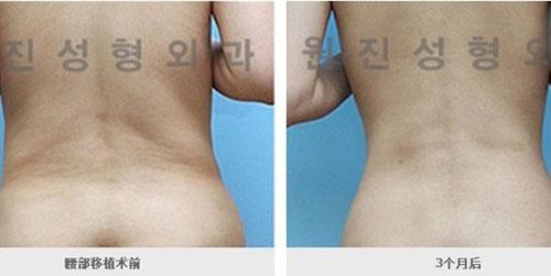 腰部吸脂手术效果图