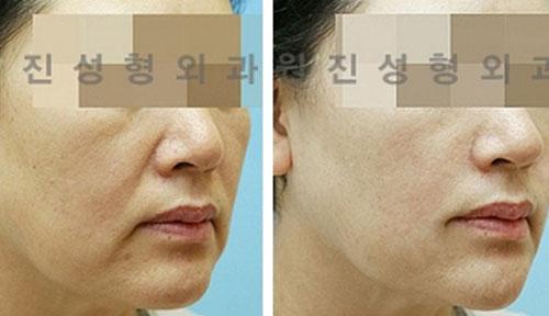 面部除皱手术效果图