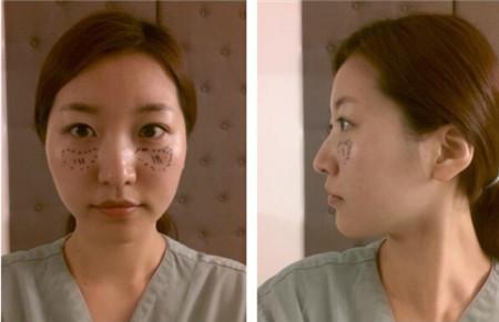 韩国自体脂肪填充术前照片