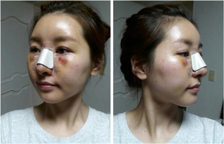 韩国脂肪填充术后恢复2周日记