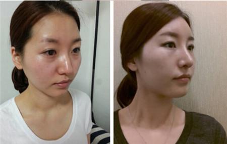 韩国脂肪填充术后两周恢复日记