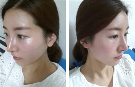 韩国巴诺巴奇脸部脂肪填充恢复两个月