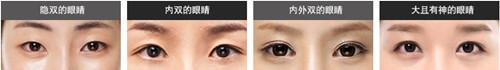眼睛的类型
