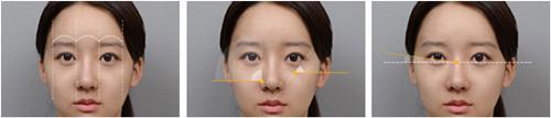 韩国灰姑娘芭比眼整形