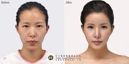 韩国新帝瑞娜整形外科双眼皮案例