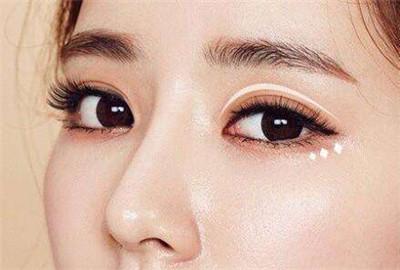 割双眼皮有几种形状_想同时做双眼皮+去眼袋,医生建议有哪些?-非常爱美