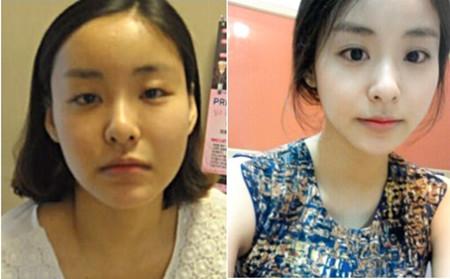 韩国灰姑娘整形对比案例