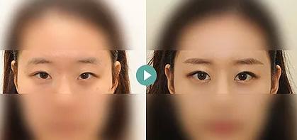 韩国TS医院双眼皮修复整形<span style=