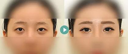 韩国TS整形双眼皮修复前后对比照