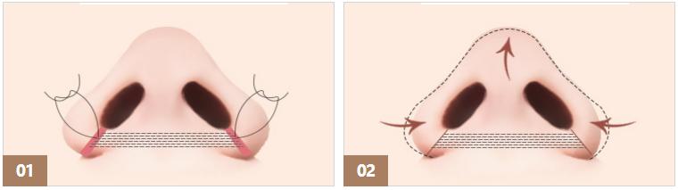 鼻翼缩小手术示意图