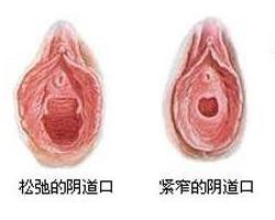 阴道紧缩韩国哪家医院好