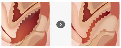 阴道缩小示意图