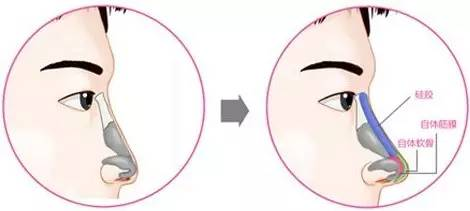 男性隆鼻整形卡通示意图