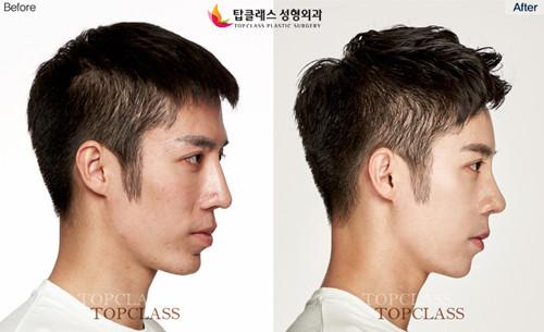 topclass整形外科隆鼻整形对比图-侧面