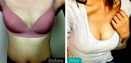 爱琳Ucanb整形隆胸对比图