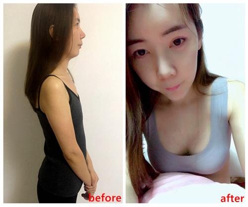 萧菲隆胸整形手术示意图