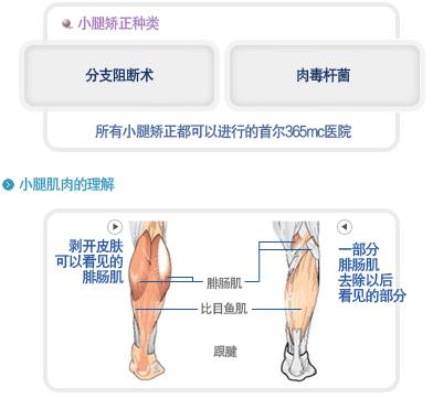 365MC医院小腿吸脂术细节分析